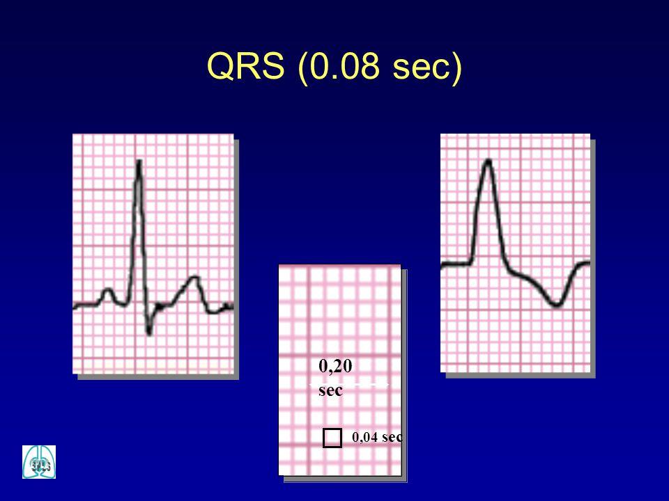QRS (0.08 sec) 0,20 sec 0,04 sec