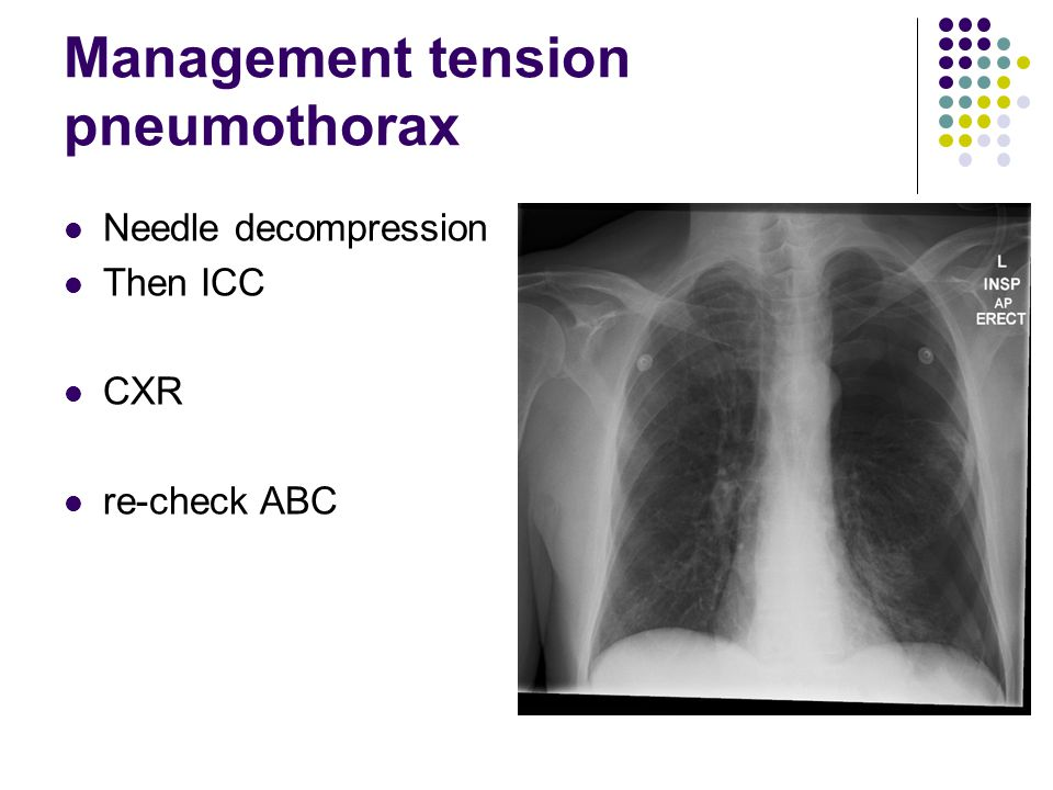 Management tension pneumothorax