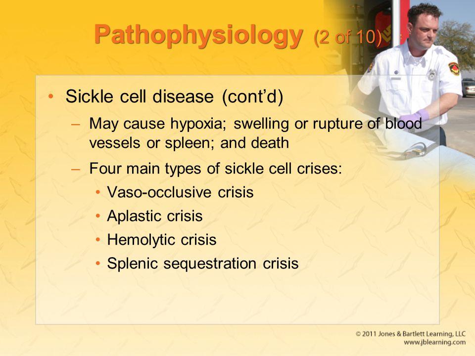 Pathophysiology (2 of 10) Sickle cell disease (cont'd)