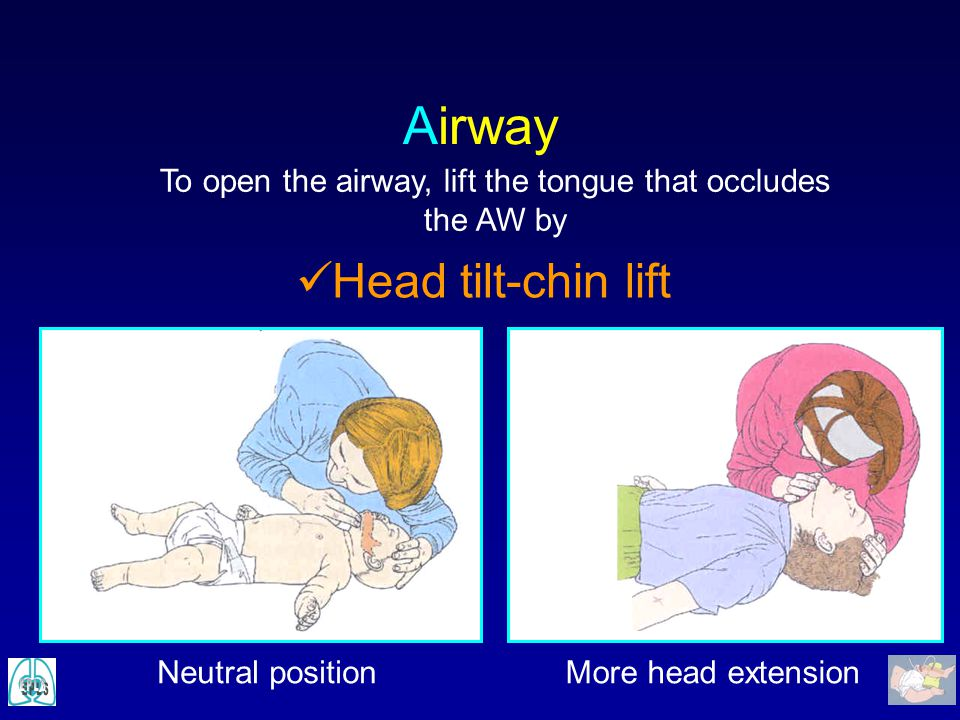 To open the airway, lift the tongue that occludes the AW by