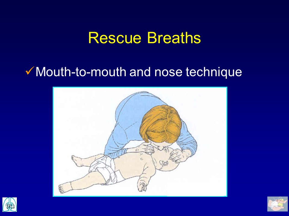 Rescue Breaths Mouth-to-mouth and nose technique