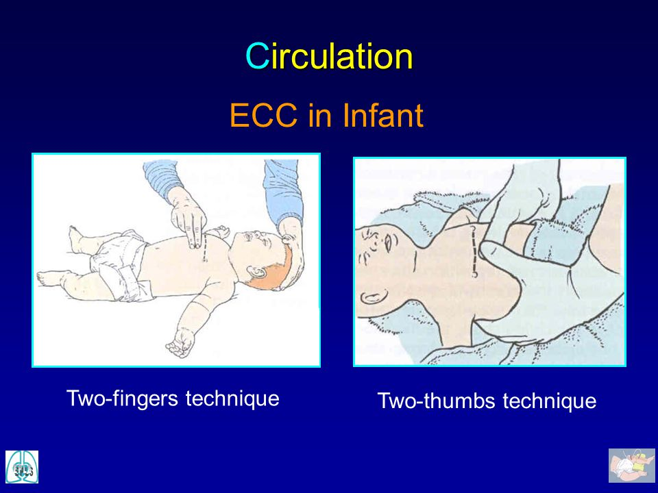 Circulation ECC in Infant Two-fingers technique Two-thumbs technique