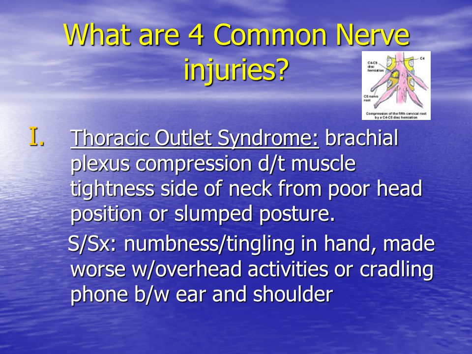 What are 4 Common Nerve injuries