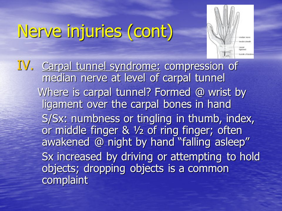 Nerve injuries (cont) Carpal tunnel syndrome: compression of median nerve at level of carpal tunnel.