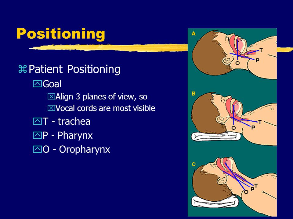 Positioning Patient Positioning Goal T - trachea P - Pharynx