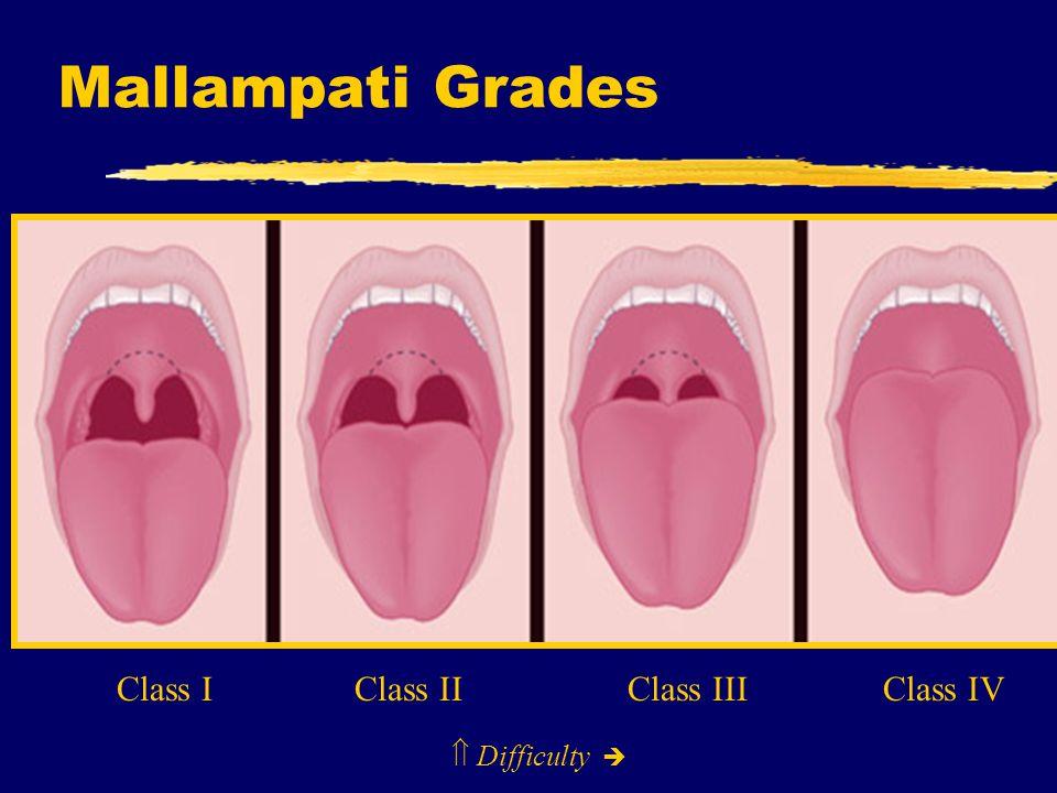 Mallampati Grades Class I Class II Class III Class IV  Difficulty 
