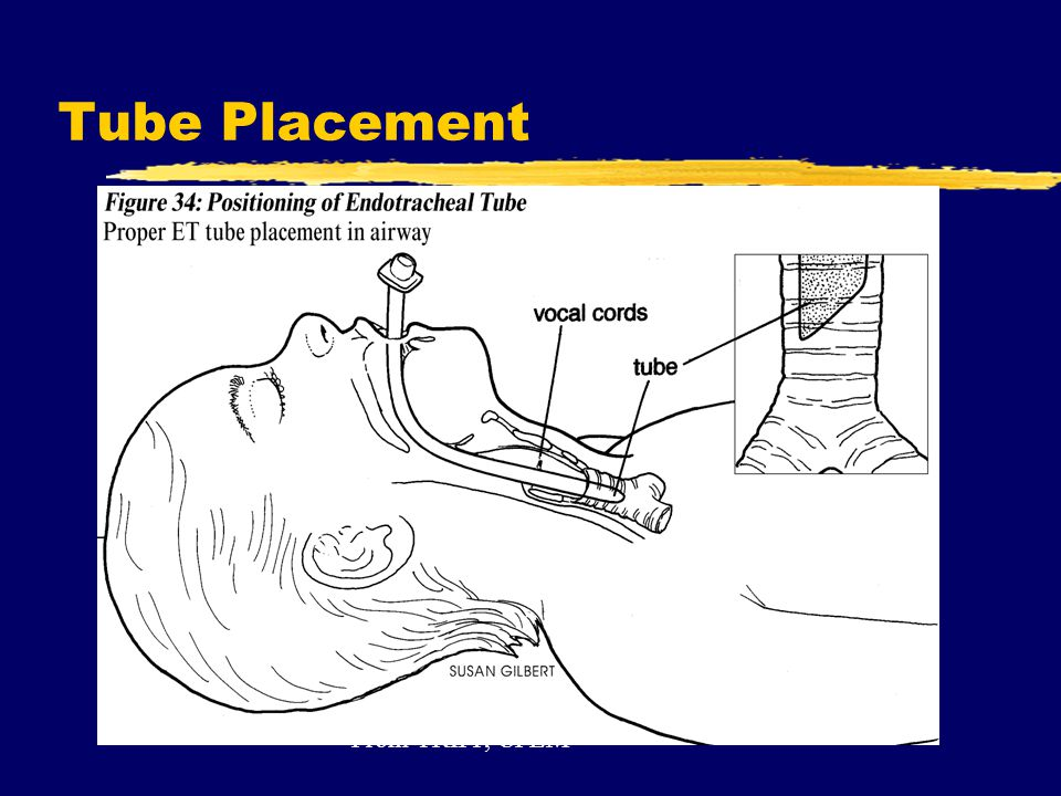 Tube Placement From TRIPP, CPEM