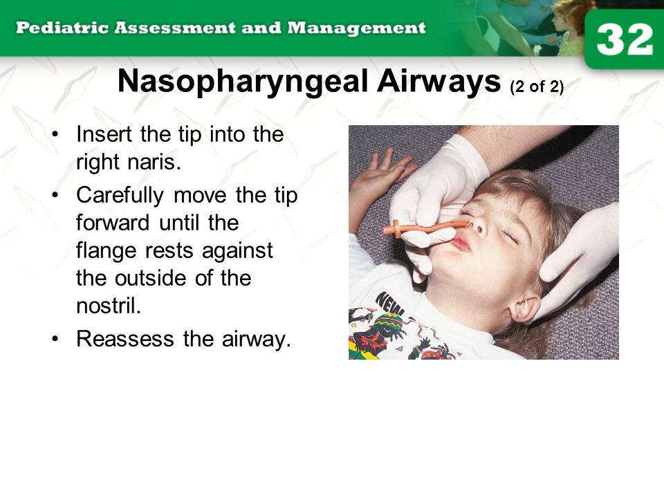 Nasopharyngeal Airways (2 of 2)