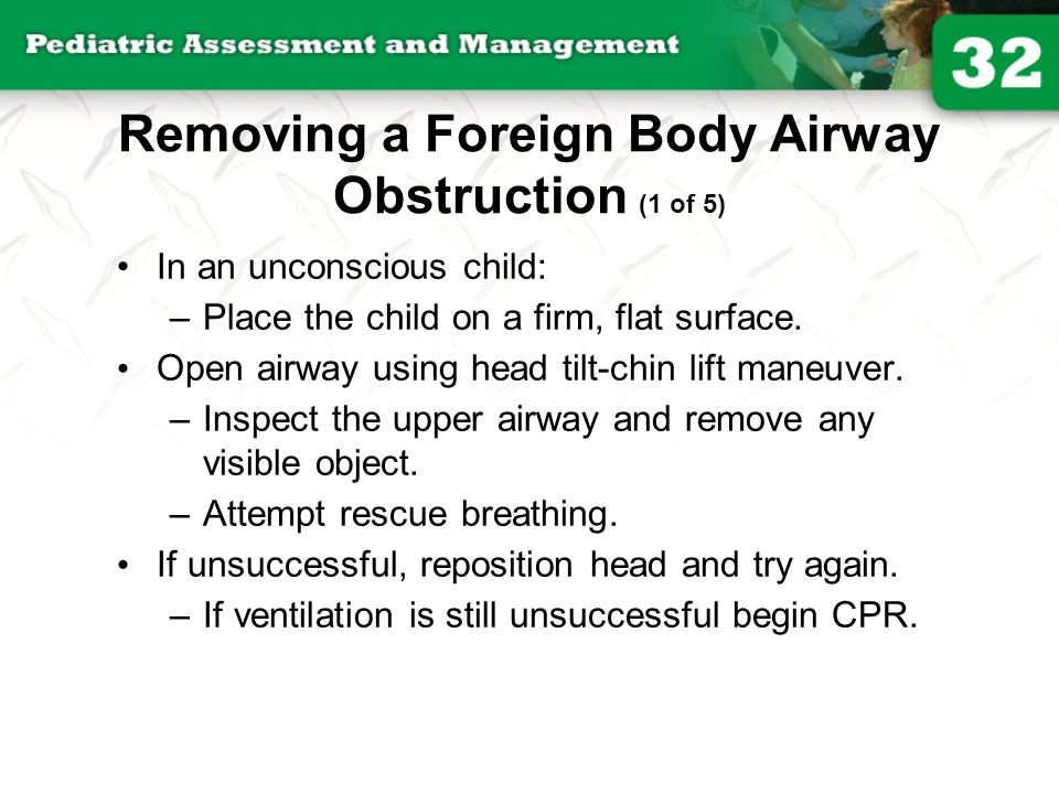 Removing a Foreign Body Airway Obstruction (1 of 5)