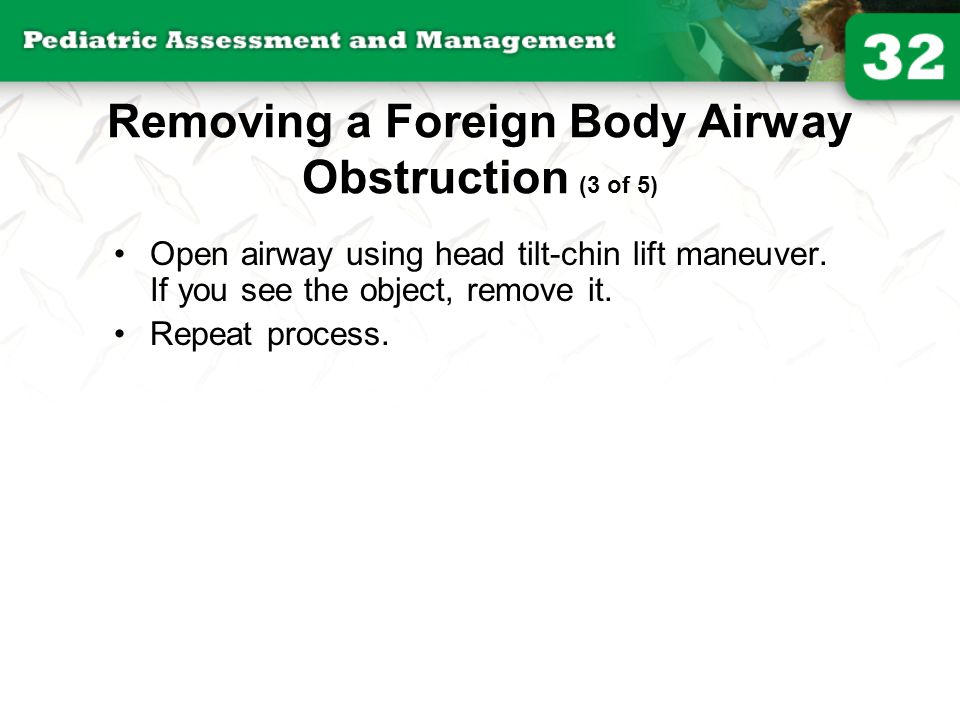 Removing a Foreign Body Airway Obstruction (3 of 5)