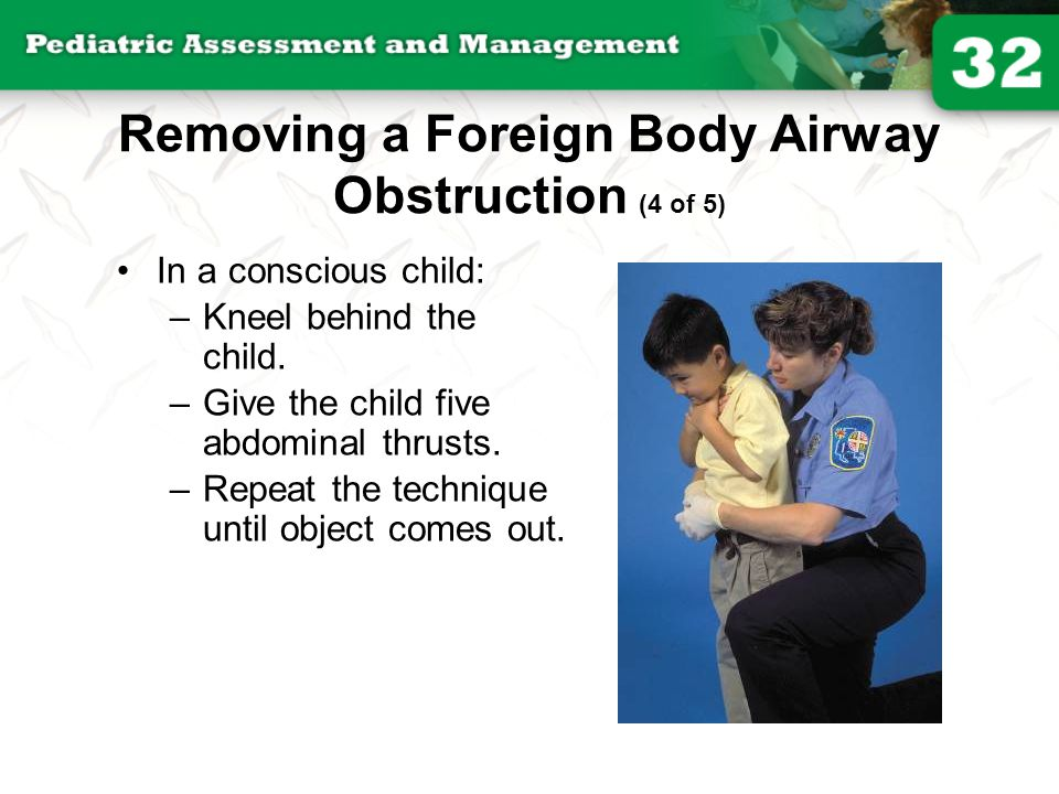 Removing a Foreign Body Airway Obstruction (4 of 5)