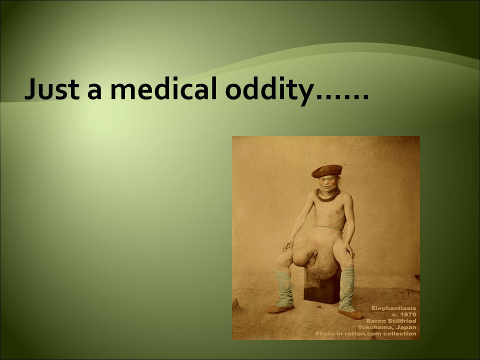 Just a medical oddity……
