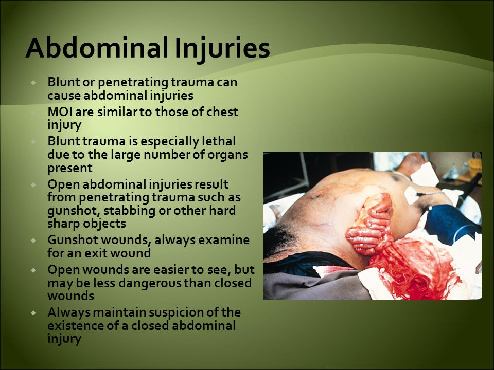 Abdominal Injuries Blunt or penetrating trauma can cause abdominal injuries. MOI are similar to those of chest injury.