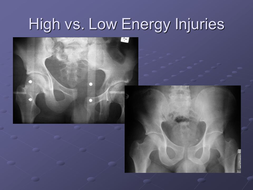 High vs. Low Energy Injuries