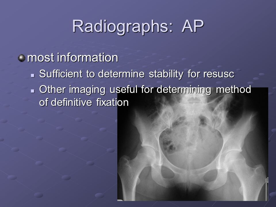 Radiographs: AP most information