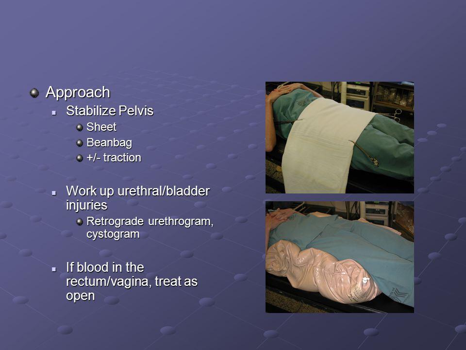 Approach Stabilize Pelvis Work up urethral/bladder injuries