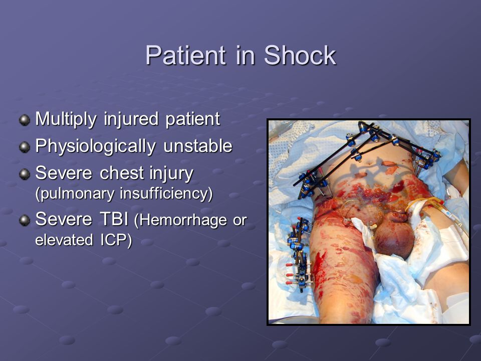 Patient in Shock Multiply injured patient Physiologically unstable