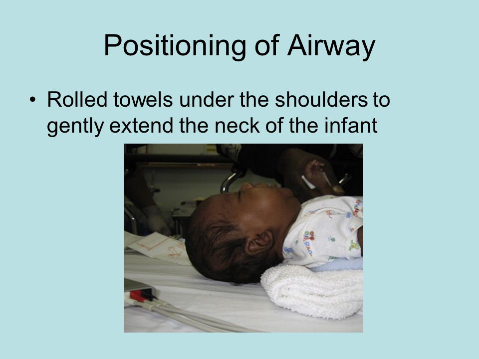 Positioning of Airway Rolled towels under the shoulders to gently extend the neck of the infant