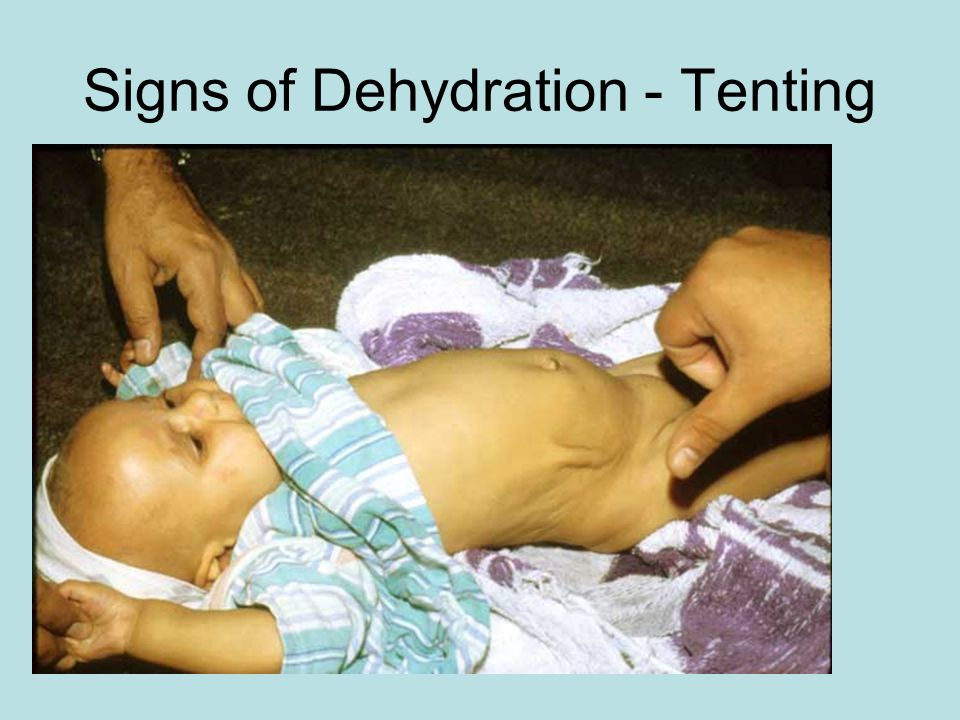 Signs of Dehydration - Tenting