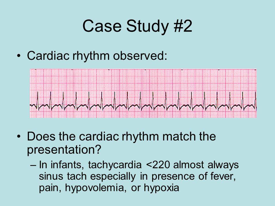 Case Study #2 Cardiac rhythm observed: