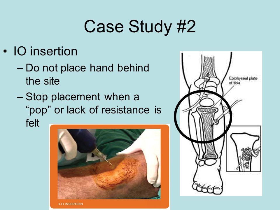 Case Study #2 IO insertion Do not place hand behind the site