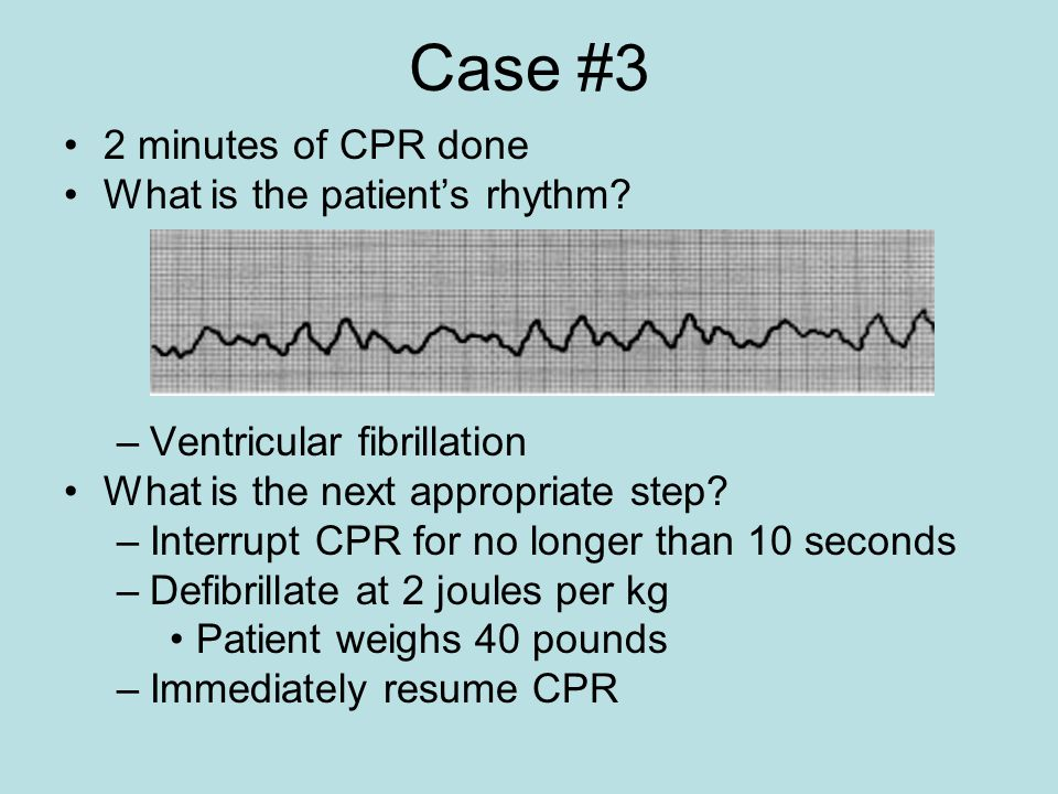 Case #3 2 minutes of CPR done What is the patient's rhythm