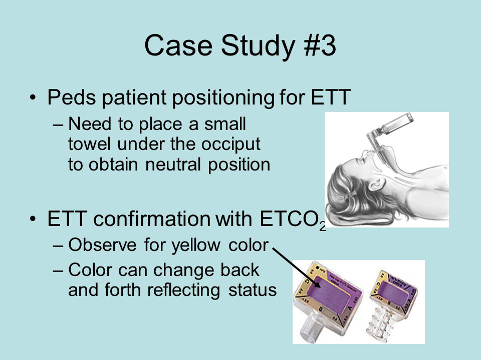 Case Study #3 Peds patient positioning for ETT