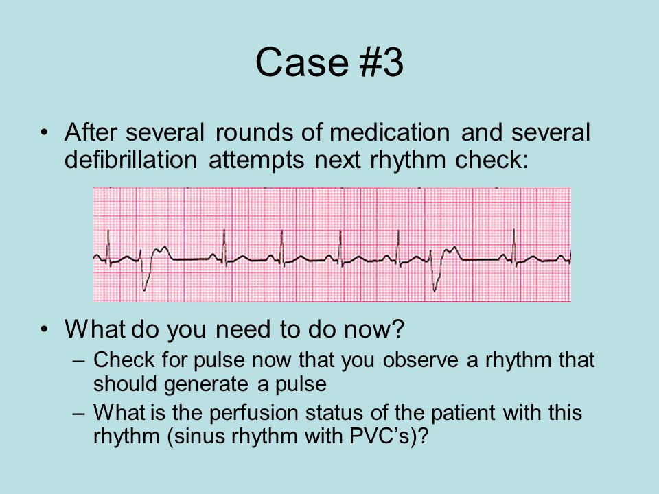Case #3 After several rounds of medication and several defibrillation attempts next rhythm check: What do you need to do now