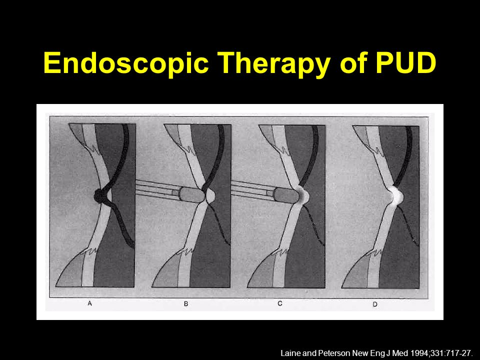 Endoscopic Therapy of PUD