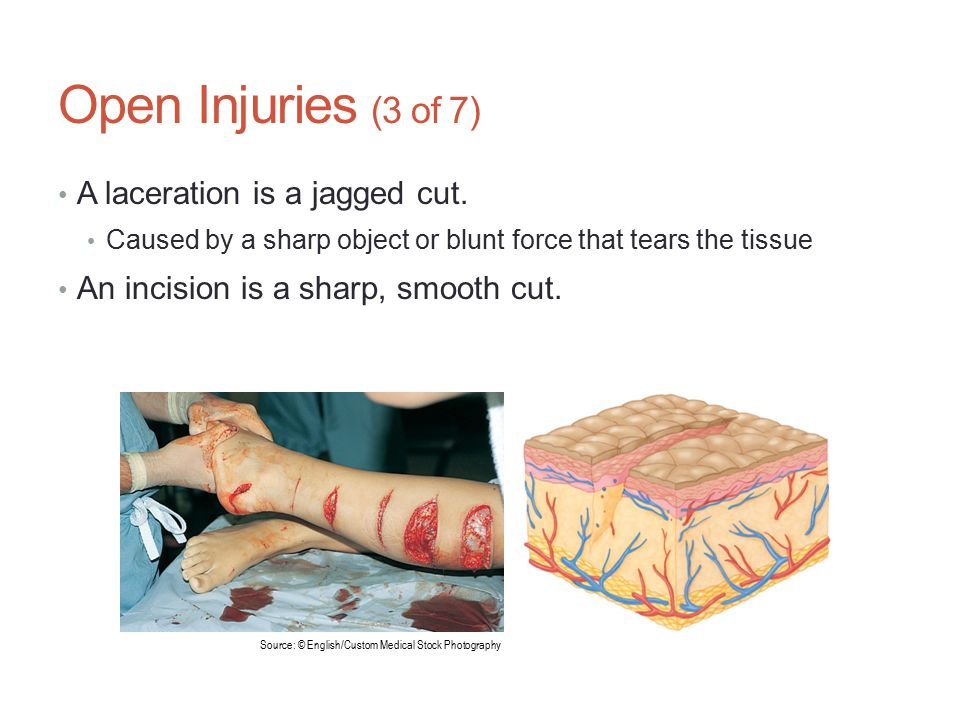 Open Injuries (3 of 7) A laceration is a jagged cut.