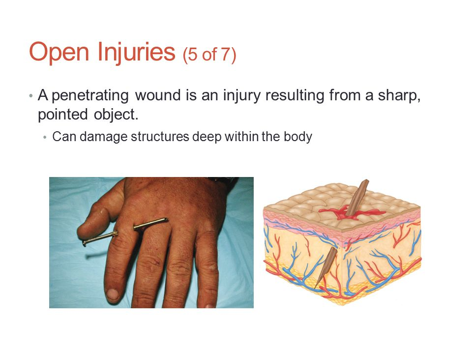 Open Injuries (5 of 7) A penetrating wound is an injury resulting from a sharp, pointed object.