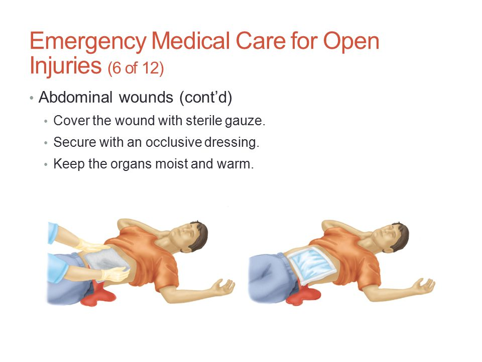 Emergency Medical Care for Open Injuries (6 of 12)