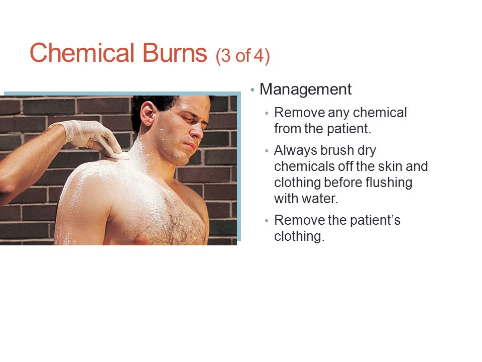 Chemical Burns (3 of 4) Management