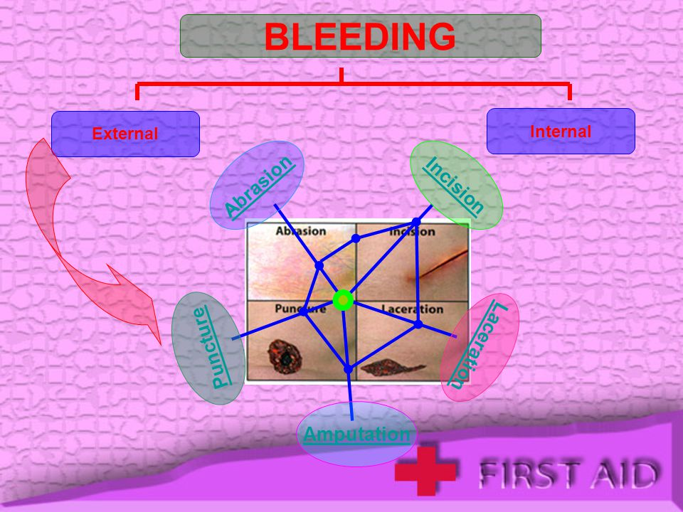 BLEEDING Abrasion Incision Puncture Laceration Amputation Internal
