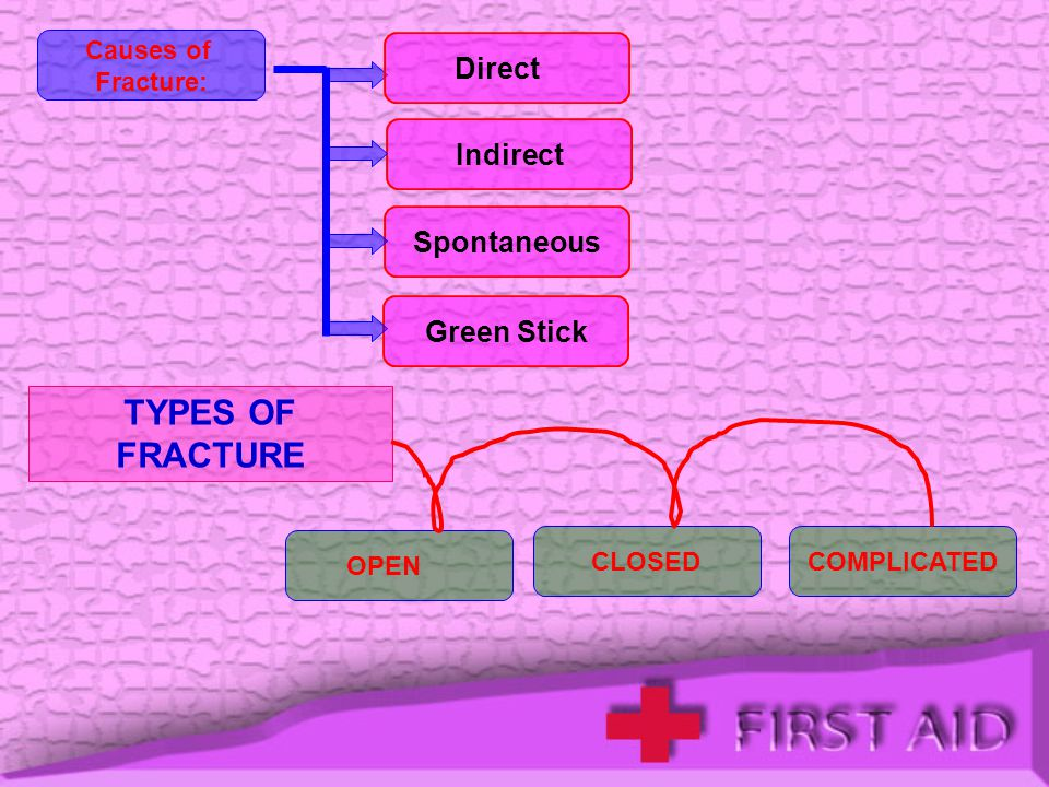 TYPES OF FRACTURE Direct Indirect Spontaneous Green Stick Causes of