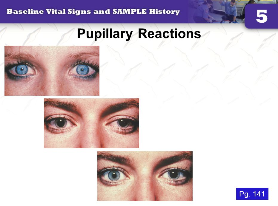 Pupillary Reactions Pg. 141
