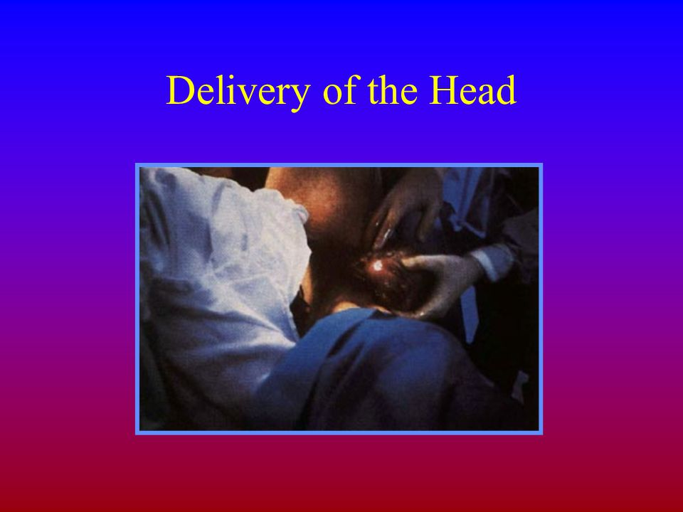 Delivery of the Head