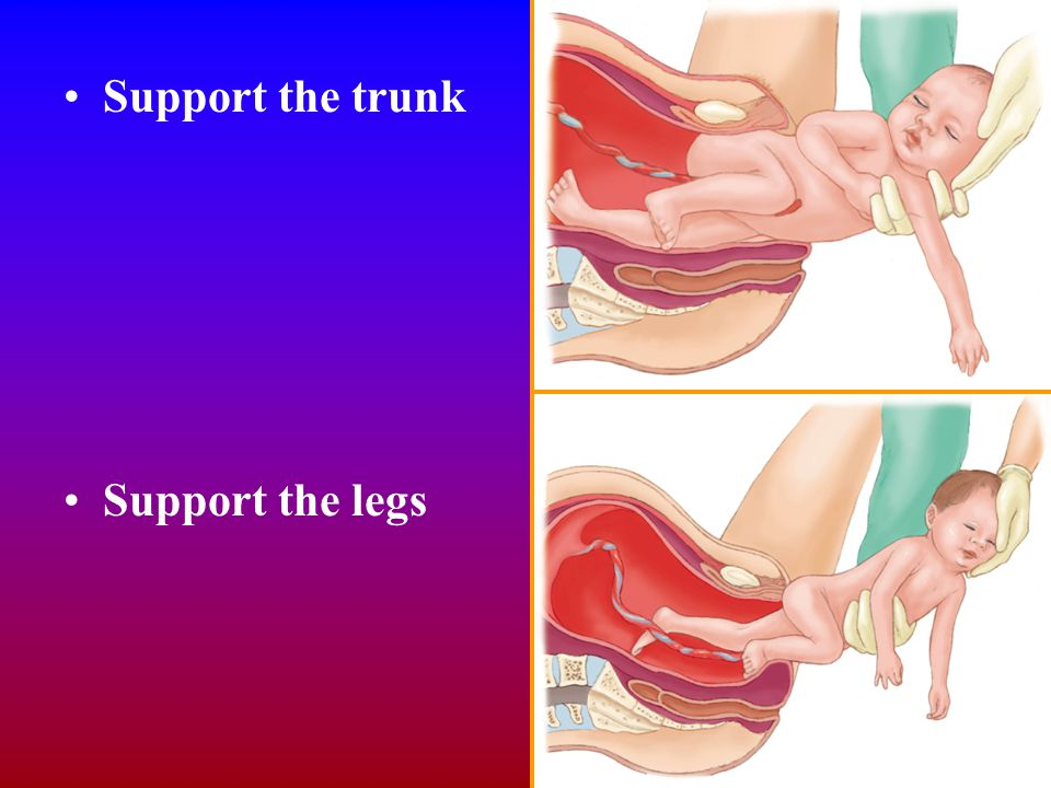 Support the trunk Support the legs