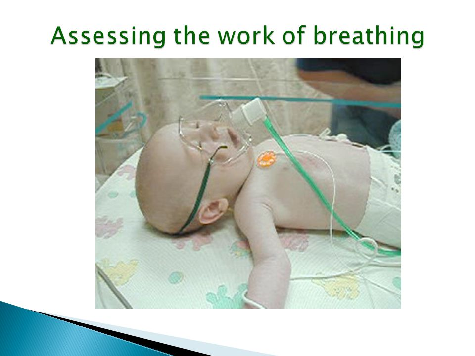 Assessing the work of breathing