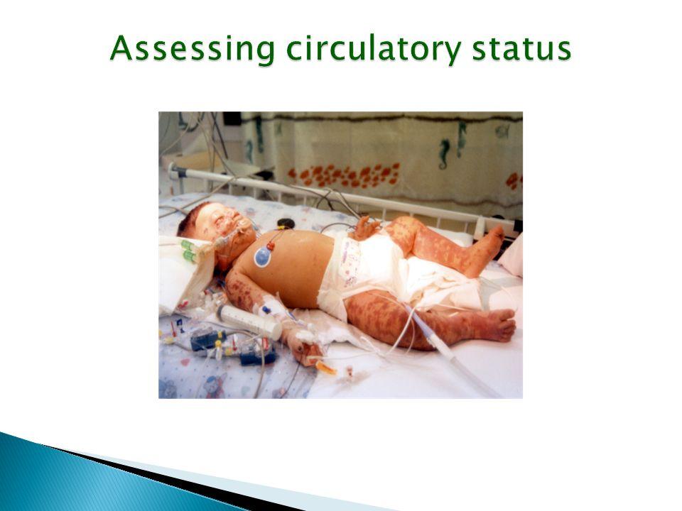 Assessing circulatory status