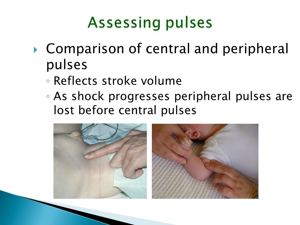 Assessing pulses Comparison of central and peripheral pulses