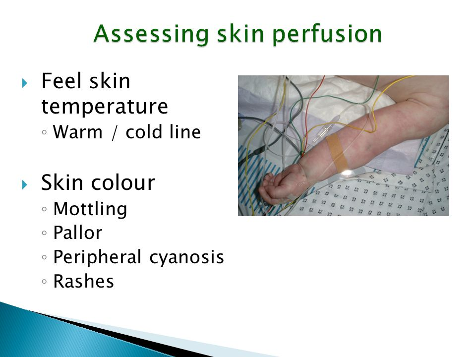 Assessing skin perfusion