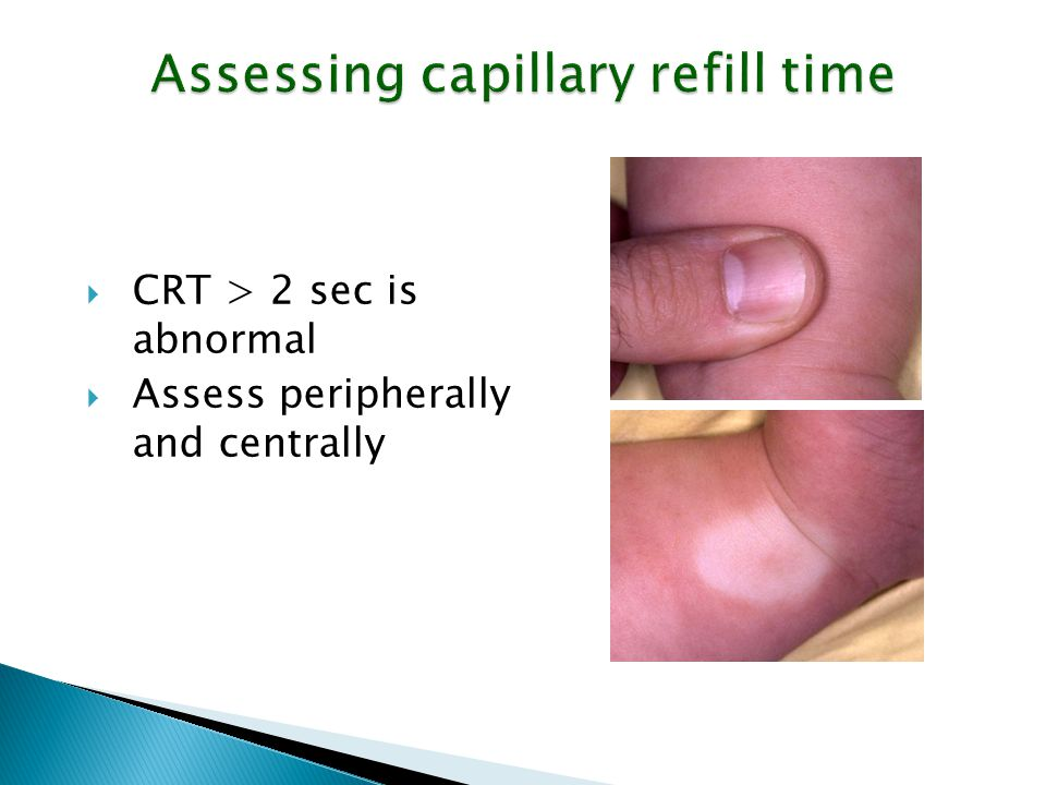 Assessing capillary refill time