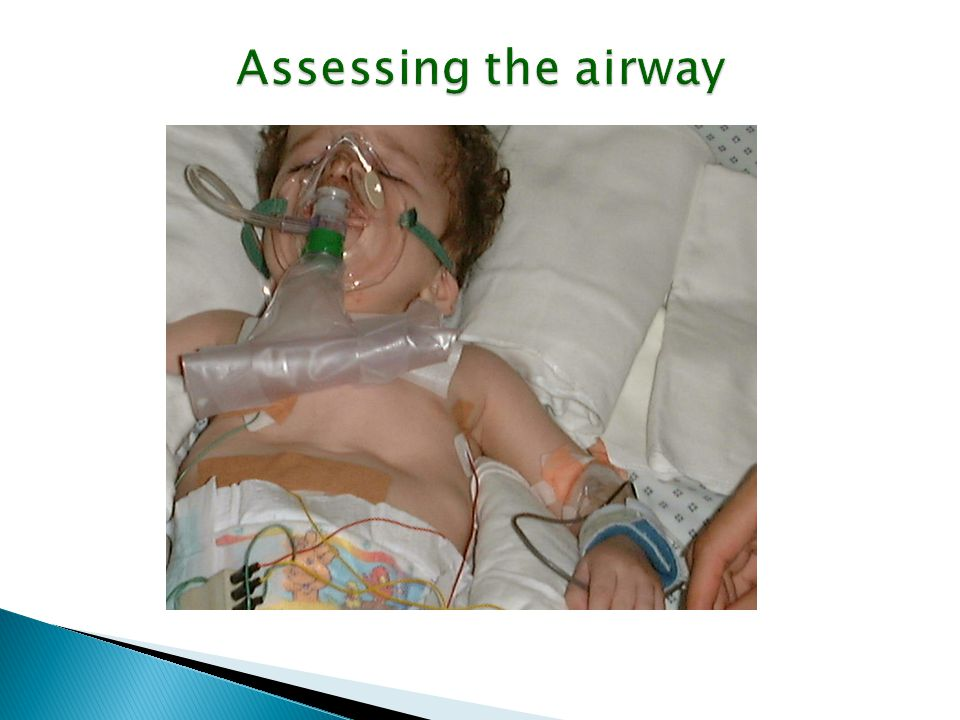 Assessing the airway