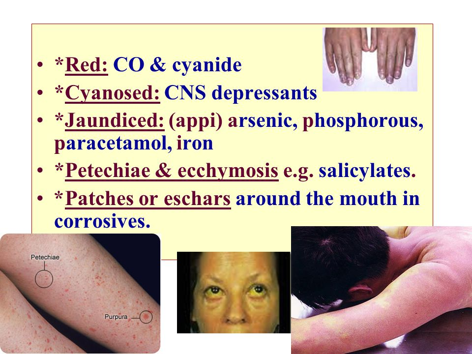 *Red: CO & cyanide *Cyanosed: CNS depressants. *Jaundiced: (appi) arsenic, phosphorous, paracetamol, iron.
