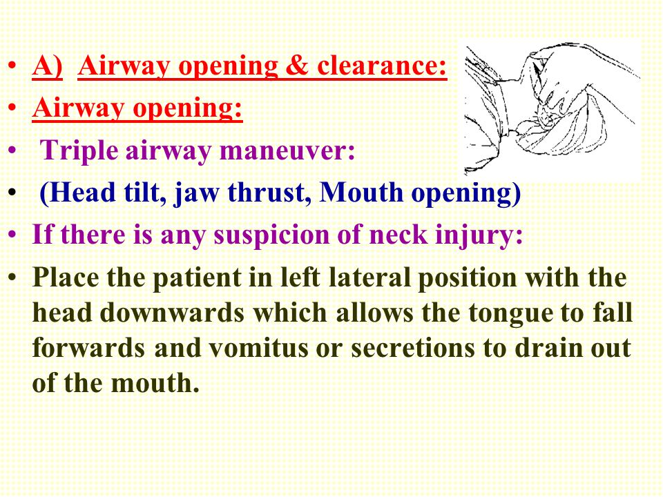 A) Airway opening & clearance: