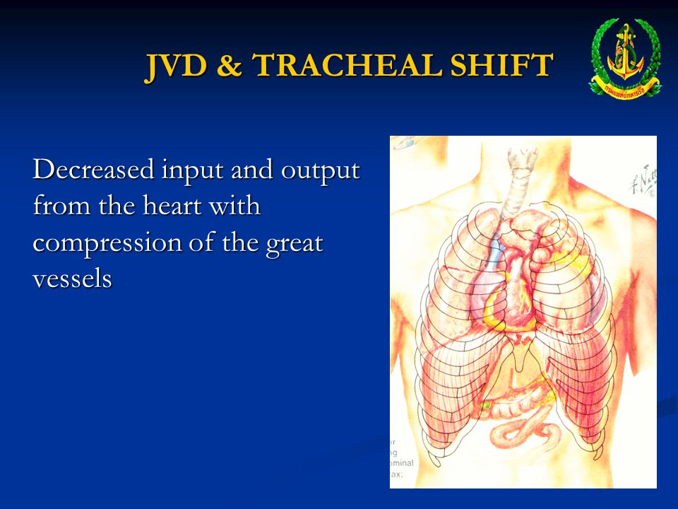 JVD & TRACHEAL SHIFT Decreased input and output from the heart with compression of the great vessels.