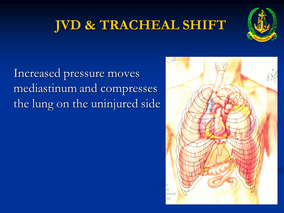 JVD & TRACHEAL SHIFT Increased pressure moves mediastinum and compresses the lung on the uninjured side.