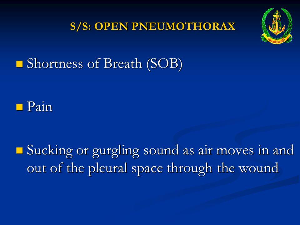 S/S: OPEN PNEUMOTHORAX