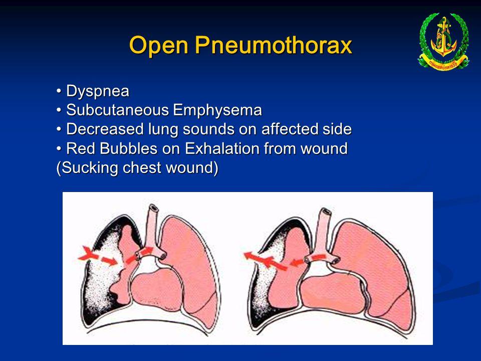 Open Pneumothorax Dyspnea Subcutaneous Emphysema